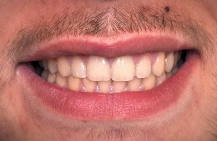 Ortodonci
